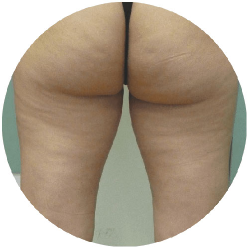 Cellulite After 2 - The Nantwich Clinic - Podiatrist near Crewe