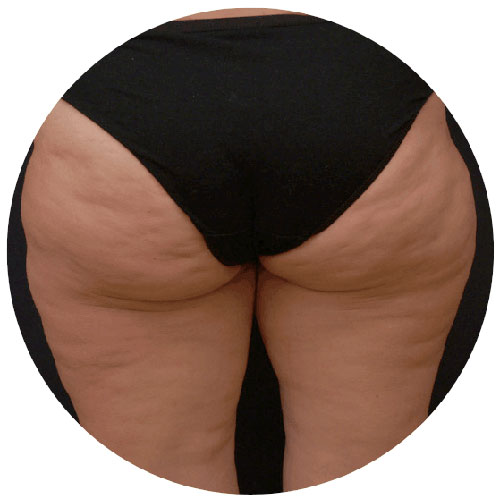 Cellulite Before 1 - The Nantwich Clinic - Podiatrist near Crewe