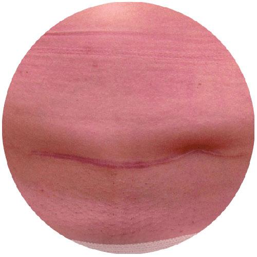 Scars - Before 2 - The Nantwich Clinic - Podiatrist near Crewe