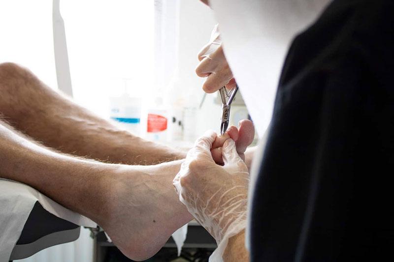 Ingrown Toenails - The Nantwich Clinic | Podiatry Clinic | Podiatrist near Crewe