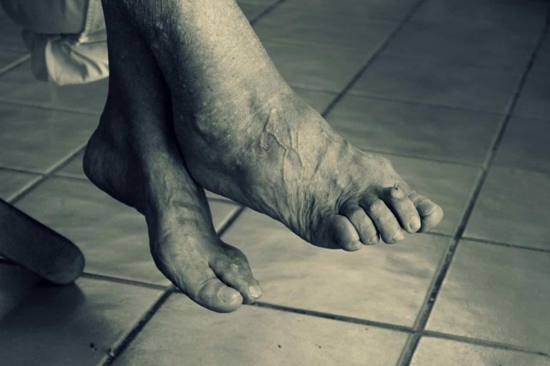 Bunions/Toe Deformities - The Nantwich Clinic | Podiatry Clinic | Podiatrist near Crewe