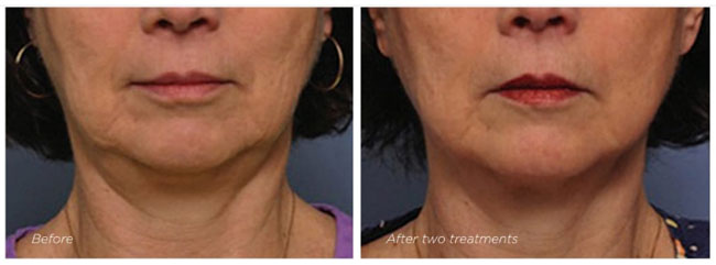 Exilis - Before and After Neck Treatment 3 - The Nantwich Clinic - Health Care & Self Care - Nantwich Cheshire