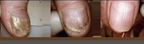 Fungal Nail - Case Study 1 - The Nantwich Clinic | Podiatry Clinic | Podiatrist near Crewe