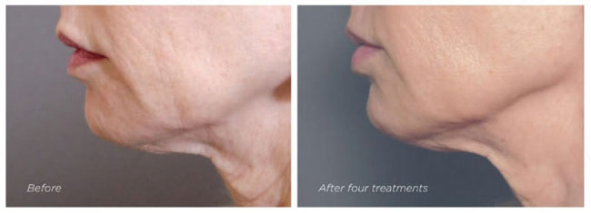 Exilis - Before and After Neck Treatment 2 - The Nantwich Clinic - Health Care & Self Care - Nantwich Cheshire