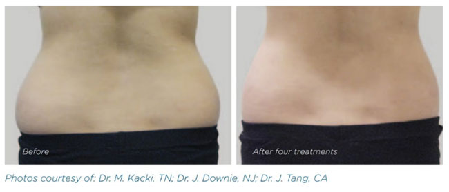Exilis - Before and After Love Handles Treatment - The Nantwich Clinic - Health Care & Self Care - Nantwich Cheshire