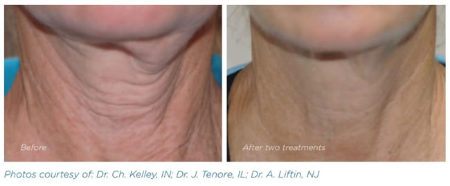 Exilis - Before and After Neck Treatment 1 - The Nantwich Clinic - Health Care & Self Care - Nantwich Cheshire
