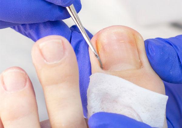 Core Podiatry | The Nantwich Clinic | Health Care & Self Care | Nantwich | Cheshire